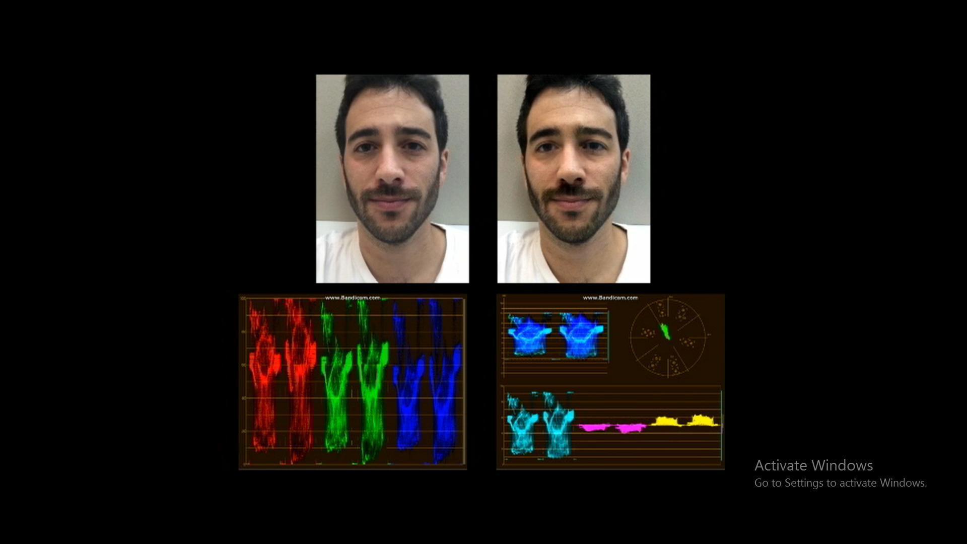 Picture of RGB camera based heart-rate estimation using Eulerian Video Magnification (EVM)